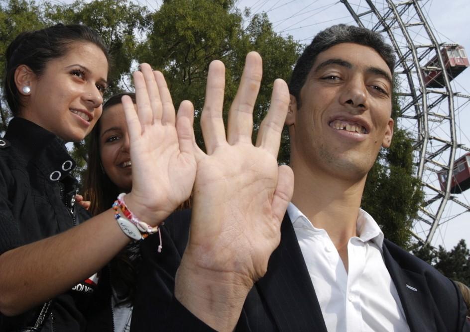 największe dłonie - rekord Guinessa